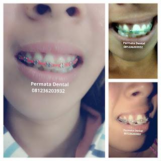 pasang behel gigi bali| pasang behel gigi denpasar| pasang behel gigi kute| pasang behel gigi nusadua | pasang behel gigi badung | pasang behel gigi gatsu| pasang behel gigi jimbaran | pasang behel gigi murah | pasang behel gigi mudah | pasang behel gigi cepat | pasang behel gigi aman | pasang behel gigi atas | pasang behel gigi bawah | pasang behel gigi atas bawah | pasang behel fashion | pasang behel gigi | pasang behel gigi gingsul | pasang behel gigi cantik | pasang behel gigi perawatan | pasang behel ahli gigi | pasang behel gigi berlubang | pasang behel gigi renggang | gambar pasang behel gigi | foto pasang behel gigi | pasang behel gigi kelinci | pasang behel gigi lepas pasang | pasang behel gigi promo | behel gigi untuk gigi tonggos | pasang behel elastis | pasang behel gigi ompong | pasang behel gigi hiasan