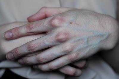 لماذا تبدو عروقنا زرقاء علي الرغم من احتوائها علي دم احمر اللون ؟؟