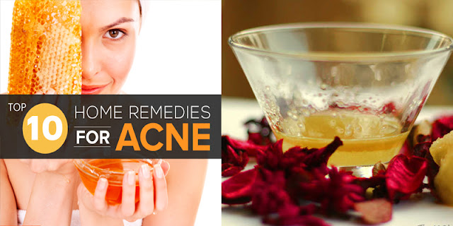10 Home Remedies For Acne That Really Works