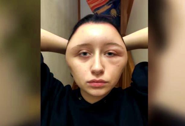 Video: Se le deformó la cabeza tras ponerse un tinte