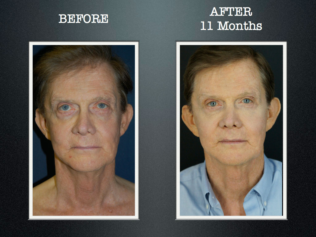 Jacksonville Plastic Surgery And Cosmetic Surgery  Breast -5107