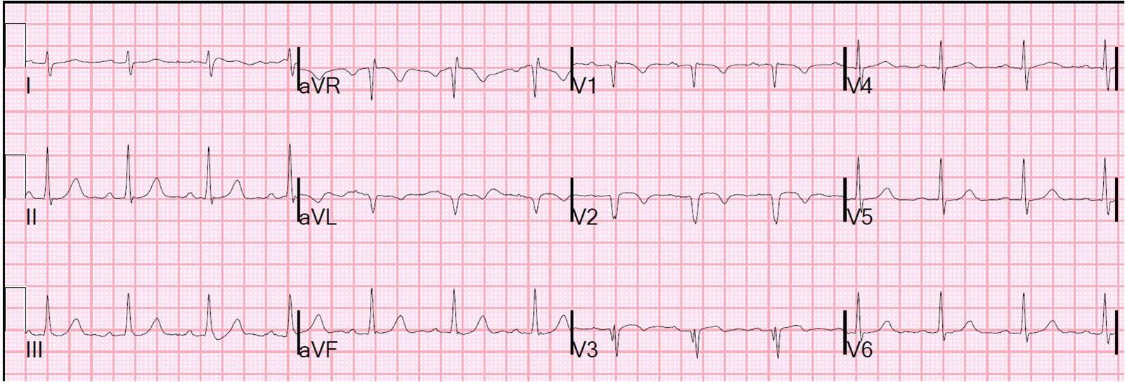 Dr. Smith's ECG Blog: ...Q Wave