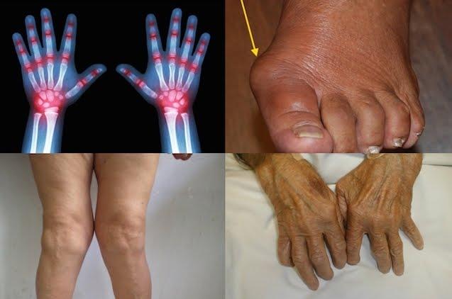 Salute News: Le sostanze inquinanti ambientali hanno peggiorato l'artrite reumatoide