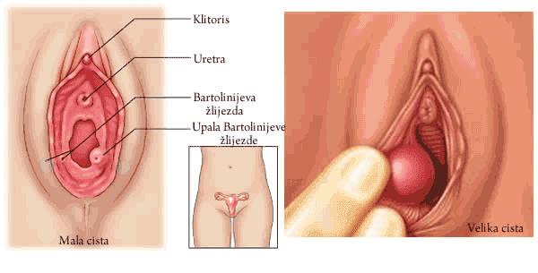 Image result for penyebab benjolan di vagina