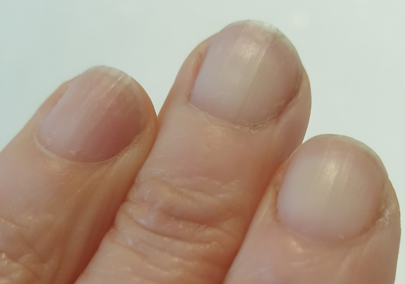 "The ""before"" shot in Is This Mutton's? article on how to improve your nails with eight simple hacks"