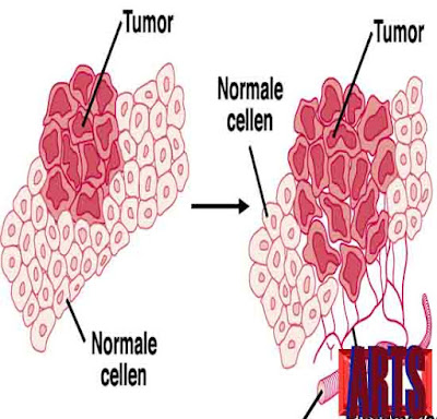 manfaat daun sirsak untuk mencegah perkembangan tumor