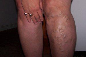 Cara ampuh menghilangkan varises di kaki