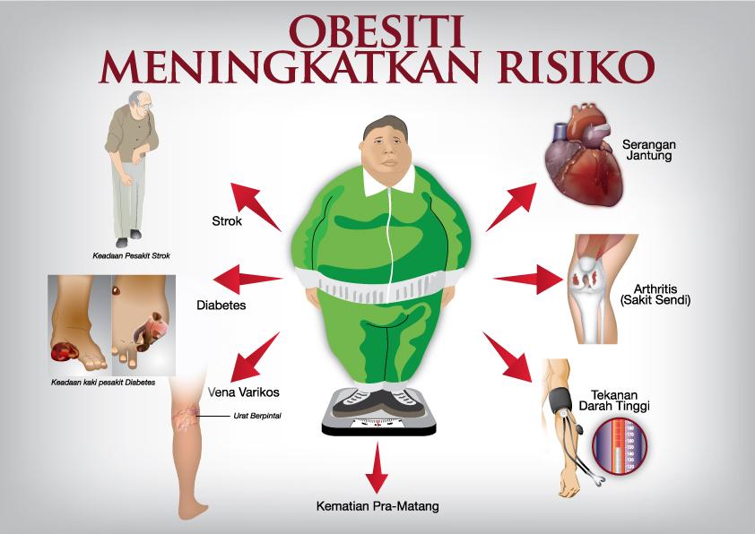 Kerap Ditemukan Orang Obesitas, Inilah 4 Hal yang Membuat Warga Indonesia Rawan Kegemukan