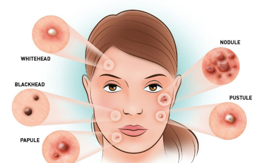 how to get rid of acne immediately home remedies