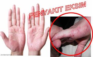 obat bintik merah gatal pada kulit tangan yang baik