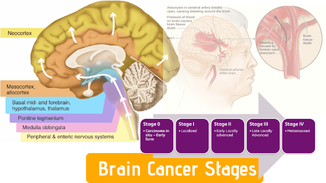 How Brain Cancer Is Staged and Graded » Brain Cancer Stages