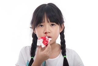 cara mengatasi anak mimisan