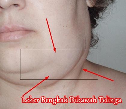 Obat Leher Bengkak Dibawah Telinga