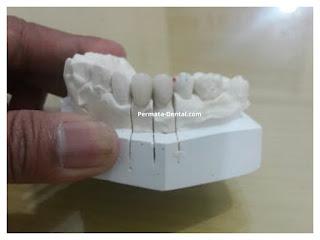 Gambar gigi yang akan memakai gigi crown di permata dental  bali| pasang gigi palsu crown cepat di permata dental  bali | pasang gigi palsu crown bagus di permata dental  bali | pasang gigi palsu crown murah di permata dental  bali | pasang gigi palsu crown aman di permata dental  bali | pasang gigi palsu crown geraham di permata dental  bali | pasang gigi palsu crown mudah di permata dental  bali | pasang gigi palsu crown permanen |harga  pasang gigi palsu crown di permata dental  bali | pasang gigi palsu crown di ahli gigi  permata dental  bali | pasang gigi palsu crown depan di permata dental  bali | pasang crown pada gigi di permata dental  bali | trend foto gambar gigi palsu crown | pasang gigi palsu crown promo di permata dental  bali | pasang gigi Crown 2017 | cara pasang gigi crown di permata dental  bali | sebelum dan sesudah pasang gigi palsu crown di permata dental  bali | pasang gigi palsu permanen bali | pasang gigi palsu permanen banyuwangi | pasang gigi palsu permanen nusa dua | pasang gigi palsu permanen jimbaran | pasang gigi palsu permanen kute | pasang gigi palsu permanen denpasar | pasang gigi palsu permanen badung | pasang gigi palsu permanen denpasar | pasang gigi palsu permanen  singaraja | pasang gigi palsu permanen  balung | pasang gigi palsu permanen murah |  pasang gigi palsu permanen mudah | pasang gigi palsu permanen  cepat | pasang gigi palsu permanen bagus | pasang gigi palsu permanen geraham | pasang gigi palsu permanen depan | pasang gigi palsu bawah | pasang gigi palsu atas | pasang gigi palsu baik| pasang gigi palsu dewasa |
