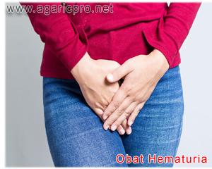 Obat Hematuria Paling Klop Berkhasiat Dari Herbal Pilihan