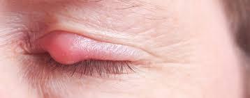 Obat Mata Bintitan Di Dalam Kelopak Mata dengan obat Cendo Dan Selain obat Cendo Yang Aman