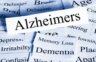 alzheimers and dementia,dementia symptoms,alzheimers and dementia tratment