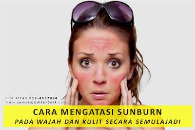cara mengatasi sunburn pada wajah dan kulit
