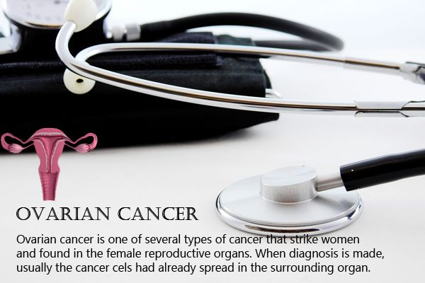 Ovarian Cancer Treatment, Stages And Symptoms