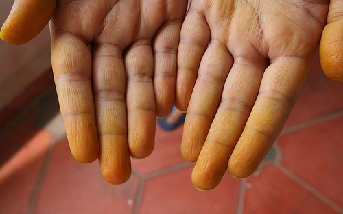Cara Menghilangkan Warna Kuning Kunyit di Kulit Tangan dan Wajah