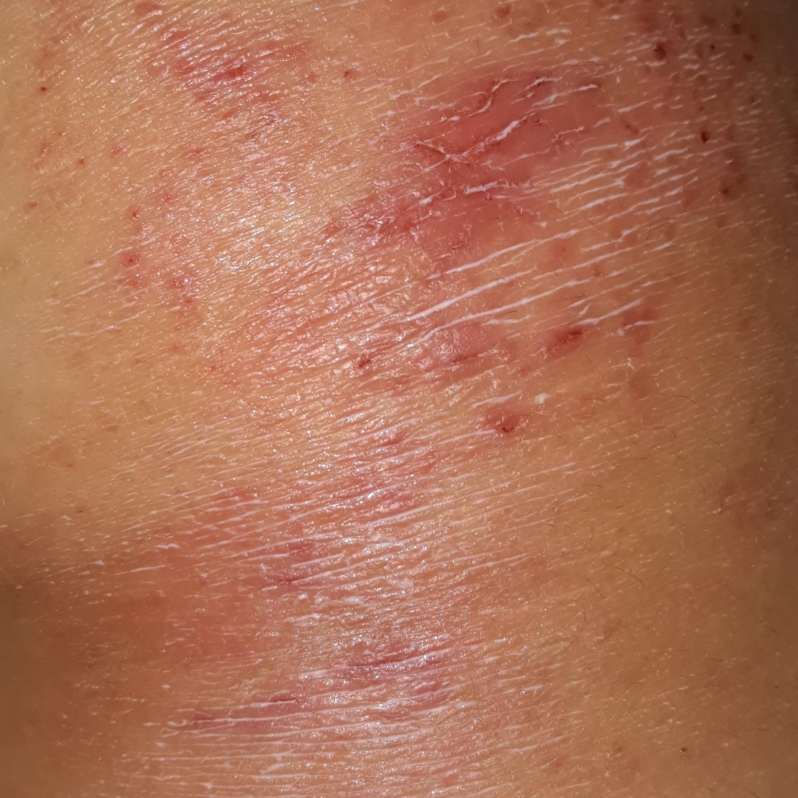 Атопический дерматит у взрослых в картинках