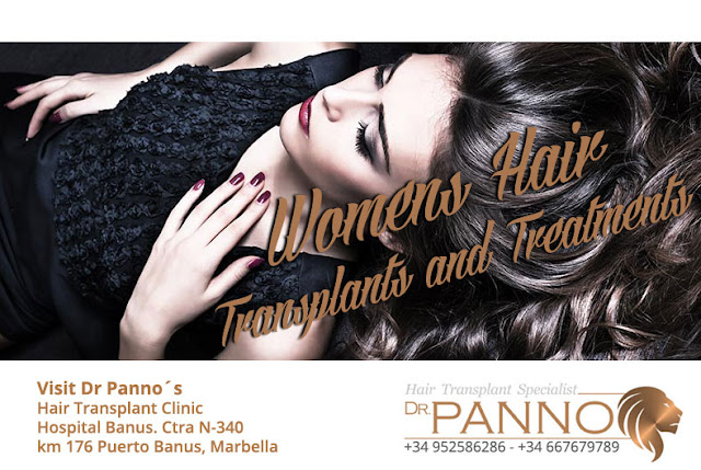 Female Hair loss and Hair Transplants by Dr Panno