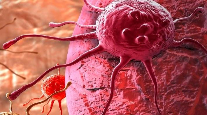 Cara Menghilangkan Tumor Jinak Tanpa Operasi