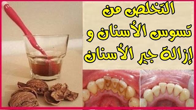 7 خطوات تتخلص بيها من جير الأسنان نهائيا