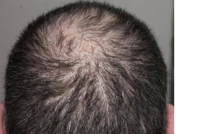 Gharelu nuskhe for hair growth in hindi