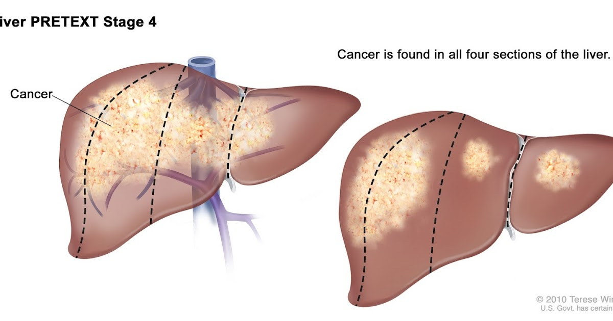 Cara Mengobati Kanker Hati Stadium 4 | Obat Alami Online