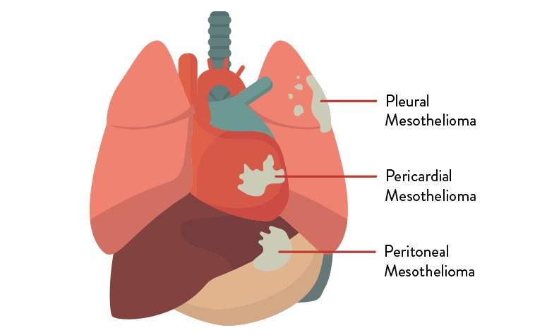 Malignant Pleural Mesothelioma Survival Rate - Mesothelioma