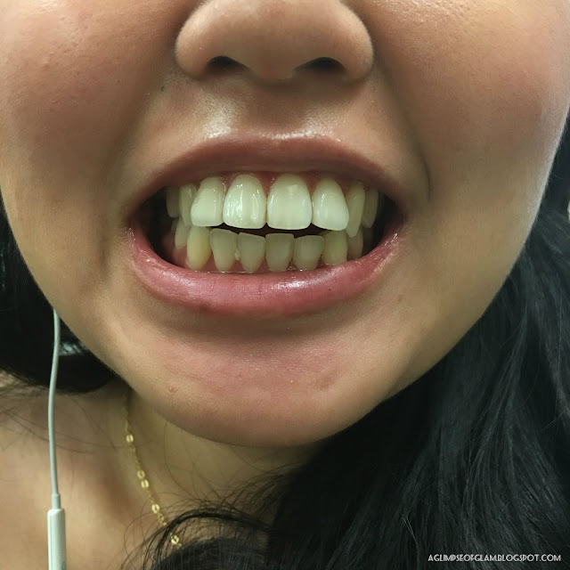 Before Photo for Smile Brilliant Teeth Whitening Review - Andrea Tiffany A Glimpse of Glam