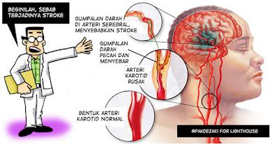 Image result for stroke kartun