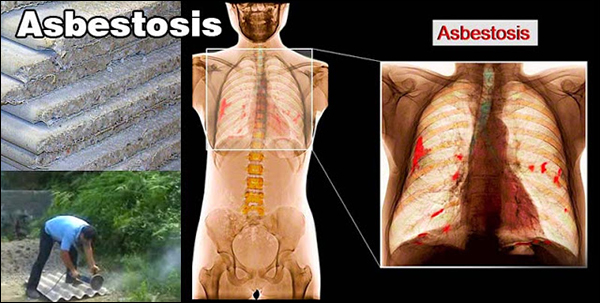 Treatment of Asbestosis in Ayurveda, Ayurvedic Treatment for Asbestosis