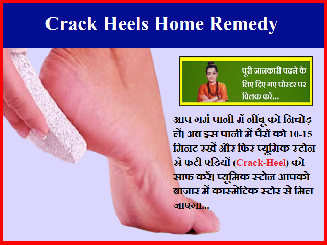 Crack Heels Home Remedy