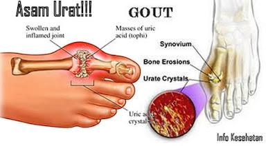 obat asam urat tradisional