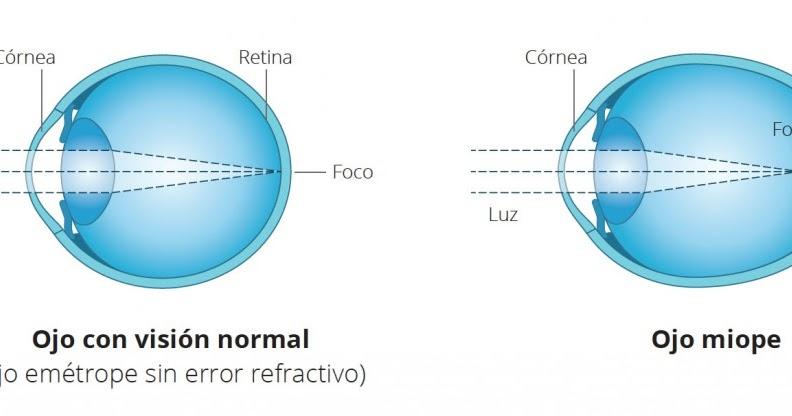 myopia 6 dioptria az
