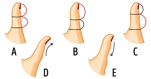 The Shape of Your Thumb Can Reveal a Lot About Your Personality