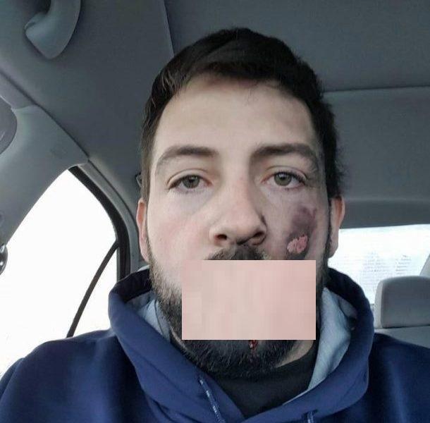 Un homme d figur par l explosion de sa cigarette for Fumer dans la salle de bain