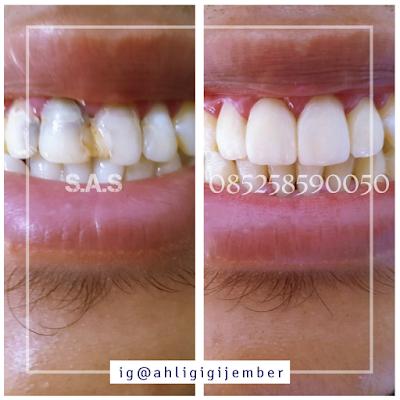 Foto tambal gigi keropos hitam berlubang rusak di sas ahli gigi tukang gigi jember