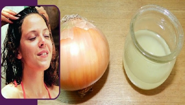 طريقة رائعة لنمو الشعر و منع تساقطه وعلاج الصلع باستخدام البصل
