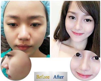 Giải phẫu tạo chiếc mũi s line thẩm mỹ