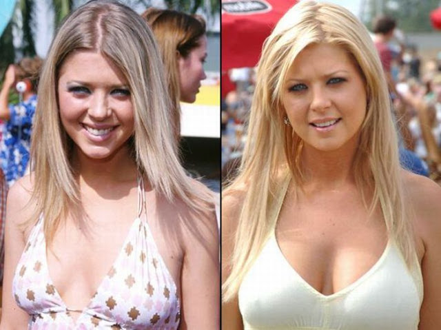 Tara Reid Antes y Despues