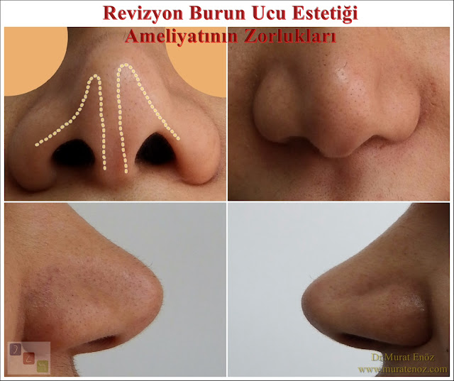 Revision nose tip plasty operation in Istanbul - Healing after revision nasal tip plasty - Revision nasal tip aesthetic surgery - Revision nasal tip aesthetic surgery prices - Revision tipplasty surgery price