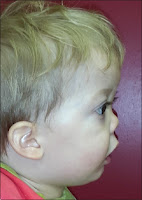 Midface hypoplasia Pictures, Symptoms, Causes, Ultrasound, Treatment