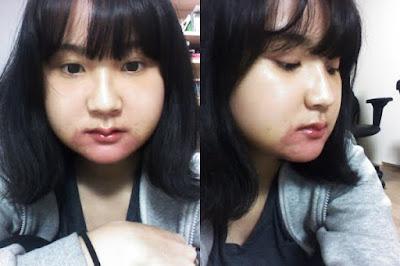 1 minggu sesudah reduksi rahang persegi & operasi dua rahang Wonjin