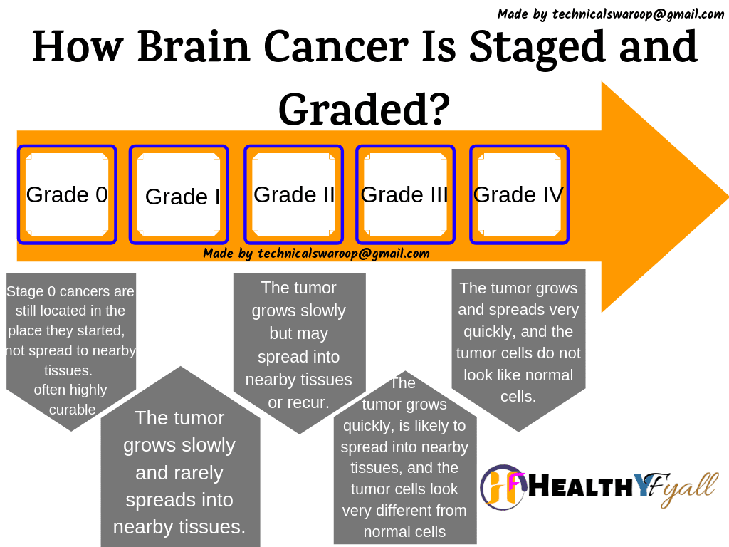 Brain Cancer Stages
