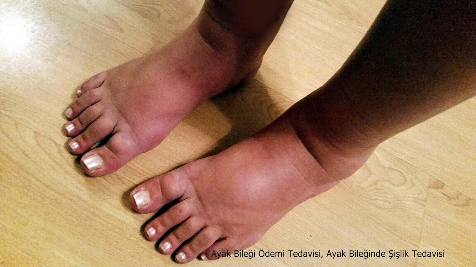 Ayak burkulmasına iyi gelen doğal yöntemler