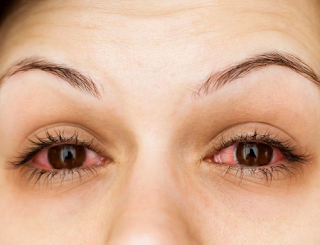 Use Softlens carelessly, BEWARE of conjunctivitis - Healthy T1ps