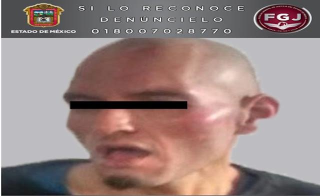 Alopecia, pelón